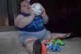 Kỳ lạ bé trai 3 tuổi nặng… 70 kg