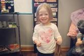 Bé gái 3 tuổi cắt tóc tặng các bạn thiệt thòi
