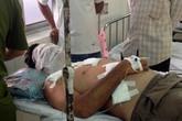 Một đại gia bị tạt axít khi đang ăn sáng