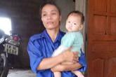 Vụ mẹ đẩy con vào đống lửa: Cháu bé 13 tuổi nguy kịch vì bị để trong nhà 4 ngày không đưa đi viện