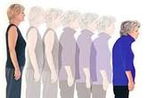 """Phụ nữ có thể """"lùn"""" đi 5cm khi về già"""