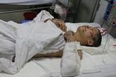 Thai phụ bị ôtô kéo lê có thể bị hoại tử hai chân