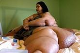 """""""Sát thủ nửa tấn"""" giảm được 363kg nhờ 11 ca phẫu thuật"""