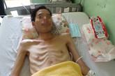 Đau bụng, chán ăn, vào bệnh viện mất 1,2 mét ruột