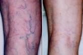 Nổi mạch máu màu xanh ở chân có nguy hiểm không?
