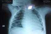 Bé trai 3 tuổi bị kim may đâm thấu ngực gây thủng phổi