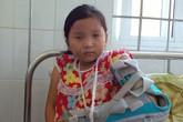 Phẫn nộ bé gái 10 tuổi bị cha đánh bầm dập, vứt xuống giếng vì mâu thuẫn với mẹ