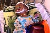 Bé trai bị đẻ non trong hố xí 2 ngăn may mắn được cứu sống