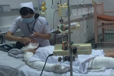 Bé gái bị mẹ tẩm xăng đốt đối mặt với nhiều chấn thương tâm lý