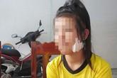 Ngăn bạn đánh nhau, nữ sinh lớp 9 bị chặn đường rạch mặt
