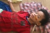 Uống nhầm axit, bé trai 7 tuổi phải cắt bỏ gần hết dạ dày