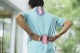 Bài thuốc xương khớp bí truyền, hiệu quả vượt trội điều trị thoái hóa, vôi hóa, gai đôi đốt sống cổ, đốt sống lưng