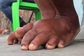Xót thương thiếu nữ có bàn chân voi chỉ mơ được đi giày cao gót