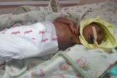 Xót thương bé 2 tuần tuổi bị mẹ bỏ rơi vì mắc bệnh lạ