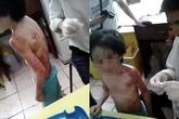 Chấn động bé 6 tuổi bị mẹ đánh thâm tím khắp người