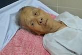 Đau xót mẹ già 92 tuổi bị con ngược đãi, đánh đuổi khỏi nhà
