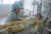 Nước mắt ân hận, day dứt của người mẹ có con 6 tuổi bỏng nặng do nấu cám lợn