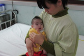 Quặn lòng bé trai không có hậu môn, 7 tháng tuổi chỉ nặng hơn 3kg