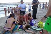 Cá mập tấn công, 2 thiếu niên nguy kịch