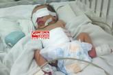 Nghẹt thở cứu sống bé sơ sinh mắc bệnh hiếm bị cha mẹ từ chối mổ