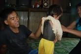 Cô bé 4 tuổi có bộ lông dày suýt bị chôn sống
