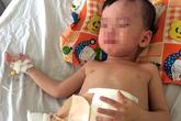 Bé 3 tuổi phải cấp cứu sau cú đạp của cha dượng