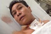 Bệnh viện Đa khoa Sa Đéc cấp cứu thành công bệnh nhân bị đứt lìa khí quản