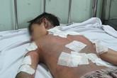 Nam sinh bị kẻ lạ tạt xăng đốt gần trường