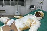 Tình cảnh khốn cùng của gia đình 4 người bỏng nặng vì nổ bình gas