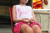 Sự thật về bé gái bị bỏng rộp toàn thân, suýt chết vì uống nước ngọt