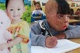 Hành trình 4 năm sống sót của cậu bé bị cha ruột đổ xăng đốt