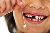 Có nên nhổ răng sữa ở trẻ em?