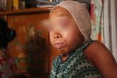 Xót xa cảnh gia đình có hai con mắc bệnh lạ