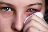 Dịch đau mắt đỏ vào mùa