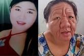 Cô gái 20 tuổi thành bà lão 70 vì tác dụng phụ của thuốc