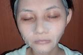 Da mặt xấu đi vì đắp mặt nạ sai cách