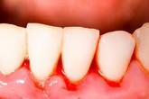 Chảy máu chân răng có phải dấu hiệu ung thư máu?
