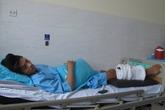 Chàng trai hoại tử chân do bó thuốc chữa gãy xương