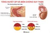 Bệnh tăng huyết áp có thể dẫn đến suy thận