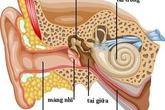 Nguy cơ suy giảm thính lực do viêm tai giữa