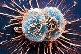 Nhật Bản tìm ra phương pháp phát hiện ung thư sau 3 phút