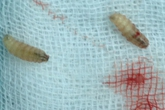 Rùng mình ca phẫu thuật gắp… 80 con giòi làm ổ trong lỗ tai để cứu bác thợ mộc