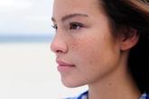 5 mẹo trị nám da đơn giản cho phụ nữ ngoài 30