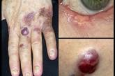 4 loại bệnh để lâu sẽ dẫn đến ung thư