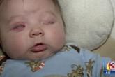 Mắc bệnh lạ, bé sơ sinh không có nhãn cầu