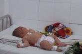 Lại thêm Bé trai 5 tháng tuổi nghi nhiễm não mô cầu