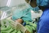 Một bé sơ sinh bị ruột nằm ngoài da hiếm gặp