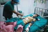 Thủng bụng, cụt tay vì đèn pin Trung Quốc phát nổ