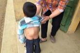 Xót xa bé 6 tuổi còng lưng vì khối u