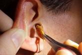 5 sai lầm bạn thường mắc phải khi ngoáy tai